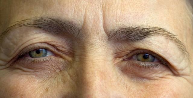 Atopický ekzém očních víček